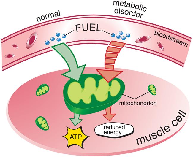 metabolism disorders